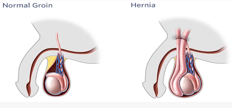 Laparoscopic Hernia surgery in jaipur