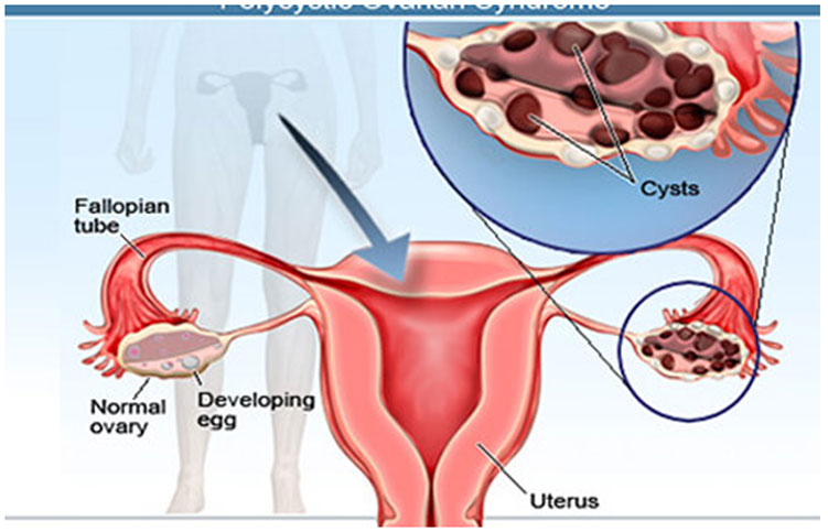 Ovarian Cysts Surgery